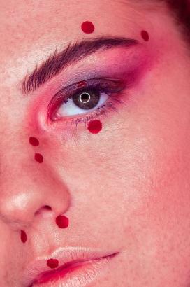 红斑痣女性面部